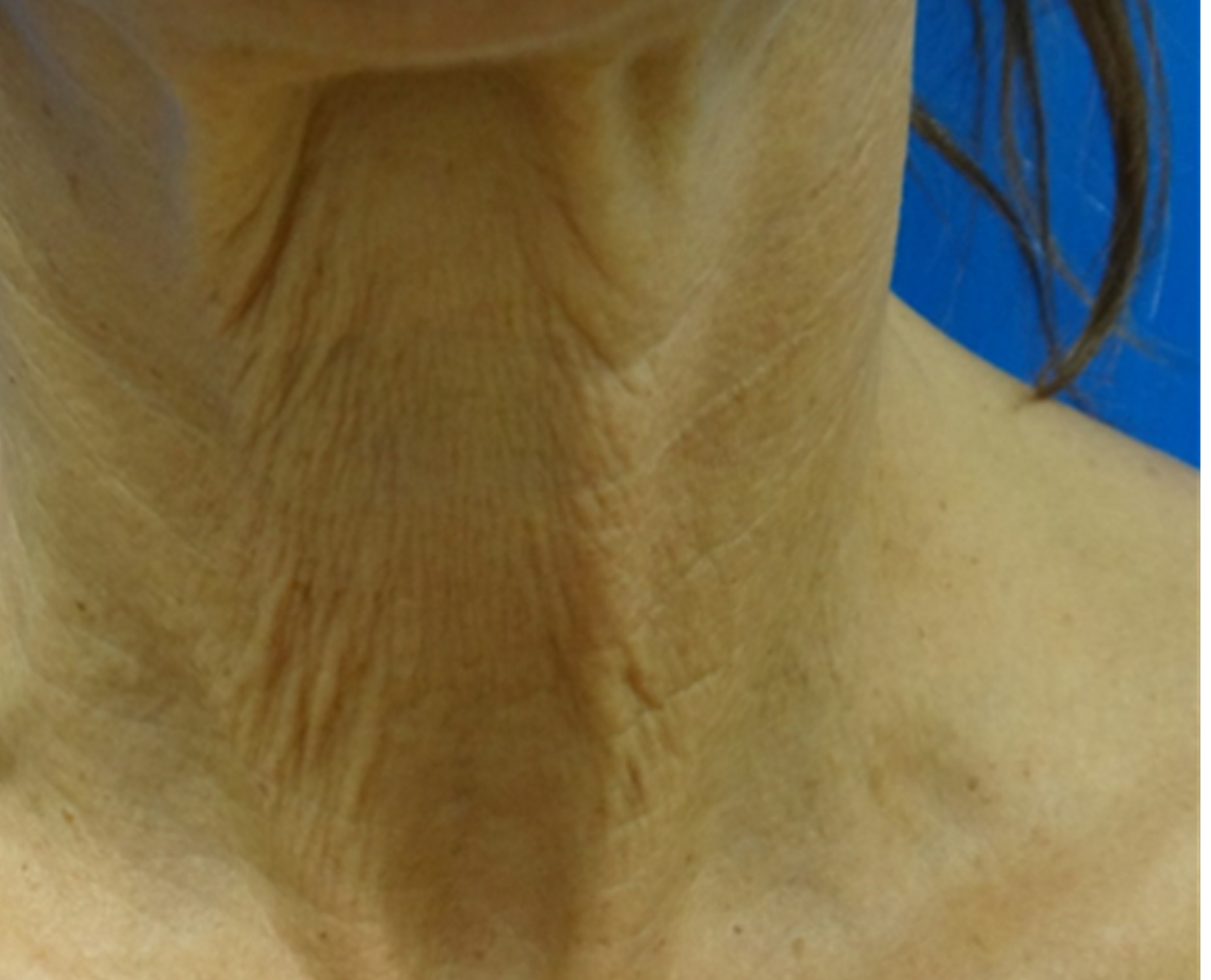 Clearlift Treatment